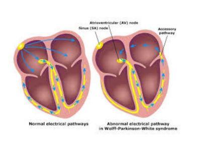 U normalnom srcu pretkomorski impulsi mogu biti sprovedeni do komora samo preko AV čvora. Preekscitacija (aktivacija koja je ranija od normalne) postoji kada impuls iz pretkomora zaobilazi normalno atrioventrikularno zadržavanje i brzo se sprovodi do komora.