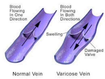 Proširene vene su dominantna bolest površnog venskog sistema. Pod proširenim venama podrazumevaju se dilatirane, izuvijugane i prominentne površne vene na nogama.