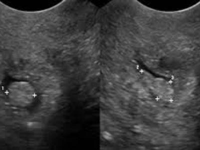 Polip je duguljasta izraslina, dobroćudni tumor s tankom peteljkom. Polip može nastati na nekoliko mesta u unutrašnjim polnim organima žene. Cervikalni polip je najčešći benigni izraštaj (hiperplazija) endocervikalne sluzokože.