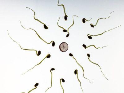 Spermogram je tzv. nativni pregled sperme. Ovim pregledom se dobijaju podaci o ukupnom broju spermatozoida, procentu progresivno pokretnih, ne-progresivno pokretnih, slabo pokretnih i nepokretnih spermatozoida.