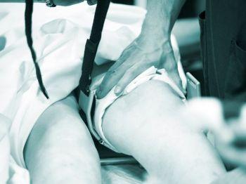Operacija zamene kolena (Totalna artroplastika TKA)