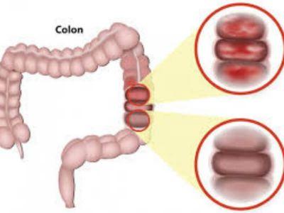 Postiradijacioni kolitis predstavlja oštećenje dela creva usled primene zračne terapije.