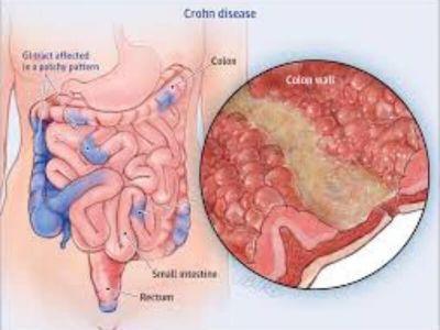 Kronova bolest je nespecifično zapaljenjsko oboljenje digestivnog trakta. Ova bolest može da zahvati bilo koji njegov deo, u velikoj većini slučajeva ileum (deo tankog creva) i kolon (debelo crevo).